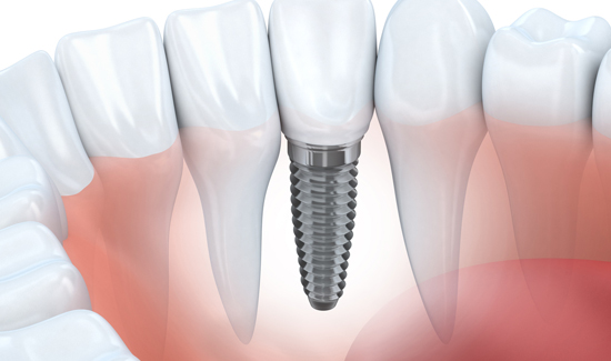Dental Implants at Arthur Road Dental Practice